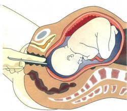 Как проводится амниотомия