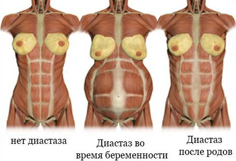 Диастаз прямых мышц