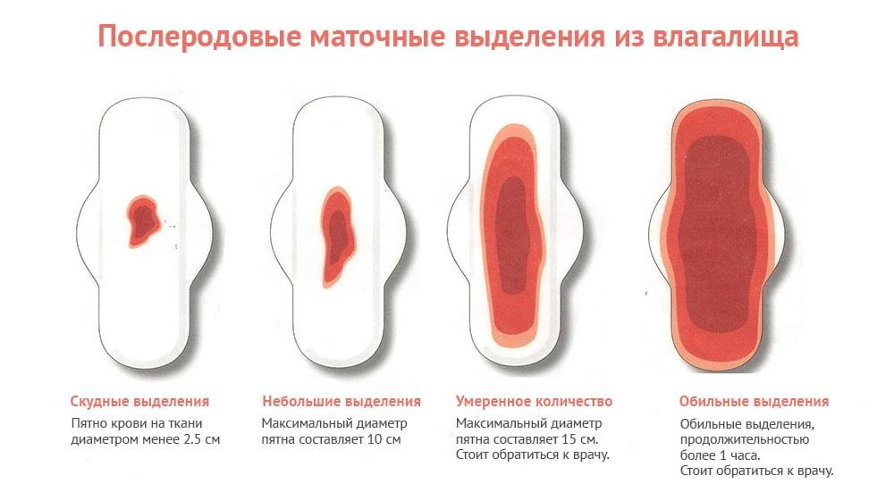 Прокладки