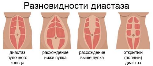 Варианты диастаза
